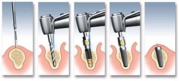 peale implantaadi paigaldamist